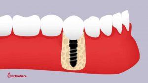 Csontpótlásban, csontpótlás, humán csontpótlás, csontpótló anyag, fogorvos, fogászat, mosonmagyaróvár