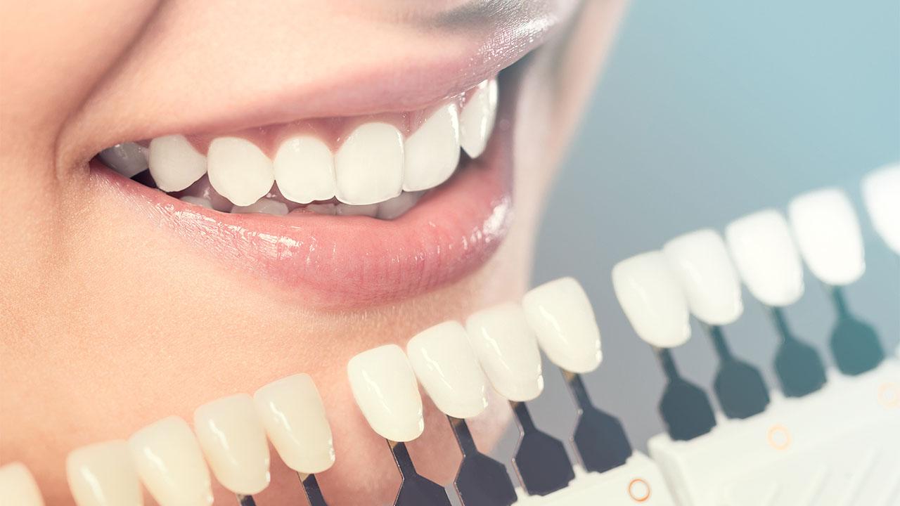 Esztétikai fogászat, fogfehérítés, fogékszer, fogászat, fogorvos, Mosonmagyaróvár, szájsebészet, magánrendelés