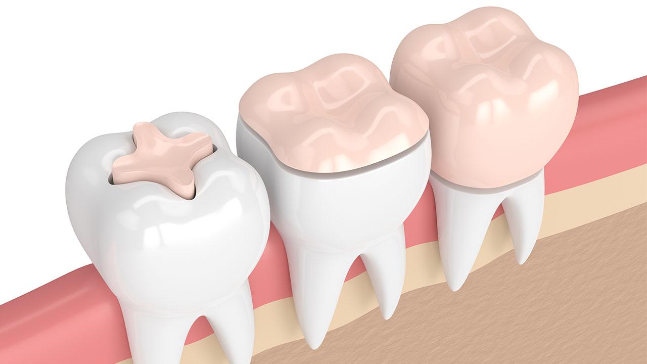 fogmegtartó kezelések, fogászat, fogorvos, mosonmagyaróvár