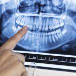 fogászati röntgen, Fogászat Mosonmagyaróvár, fogorvos Mosonmagyaróvár, röntgen, fogászati röntgen